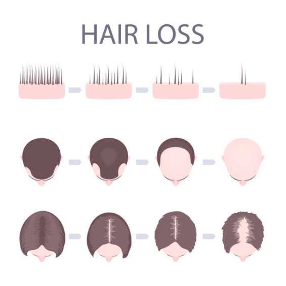 Affordable caribbean hair treatment in london